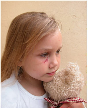 PTSD and child abuse